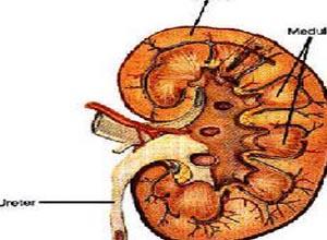 急性溶血性尿毒综合征,急性溶血性尿毒综合征