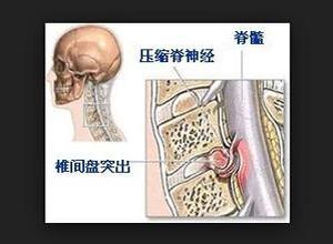颈椎间盘突出症