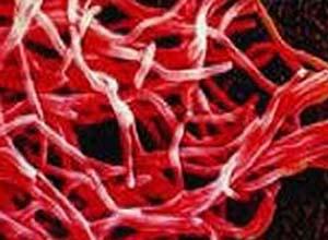 诺卡 巩膜炎/诺卡菌性巩膜炎概述