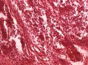 韦格纳/韦格纳肉芽肿性巩膜炎概述