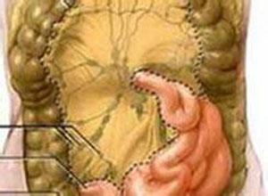 小儿急性肠系膜淋巴结炎