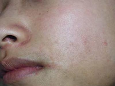 面颈部毛囊性红斑黑变病图册