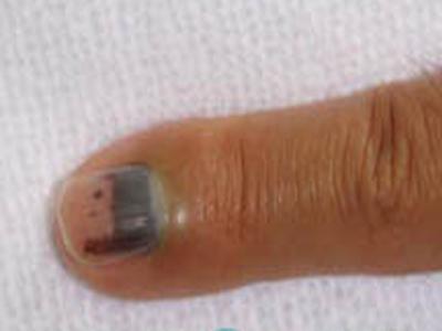 化脓性指头炎多为指端异物刺伤后所致,亦可继发于甲沟炎.