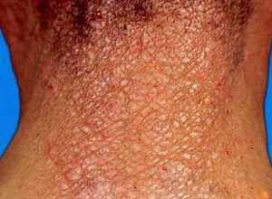 硬皮病偏方_皮肤肌肉增厚、纤维化