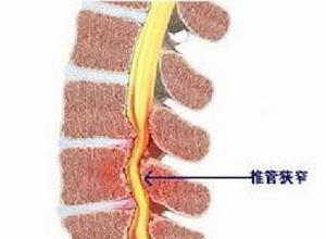 颈腰骨康汤的组成_腰椎椎管狭窄,腰椎椎管狭窄的原因,腰椎椎管狭窄怎么办-外科-骨 ...